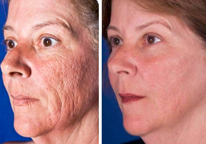 anti aging clinic for men